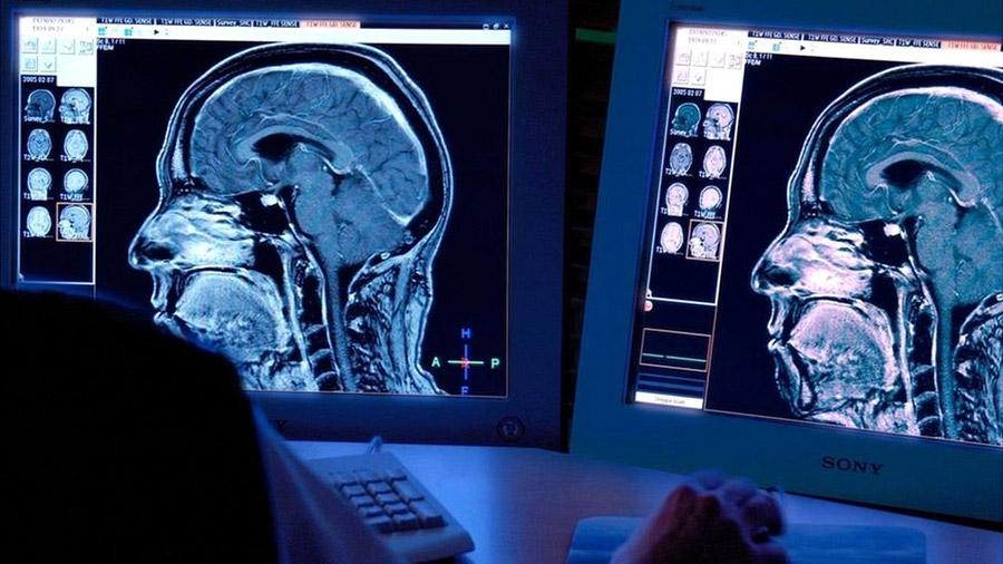 Los extraordinarios casos en los que un daño en el cerebro cambia para bien la personalidad