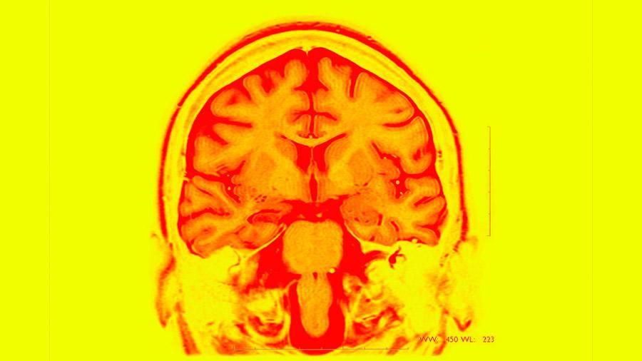 Prueban con éxito un implante cerebral que puede mejorar la memoria