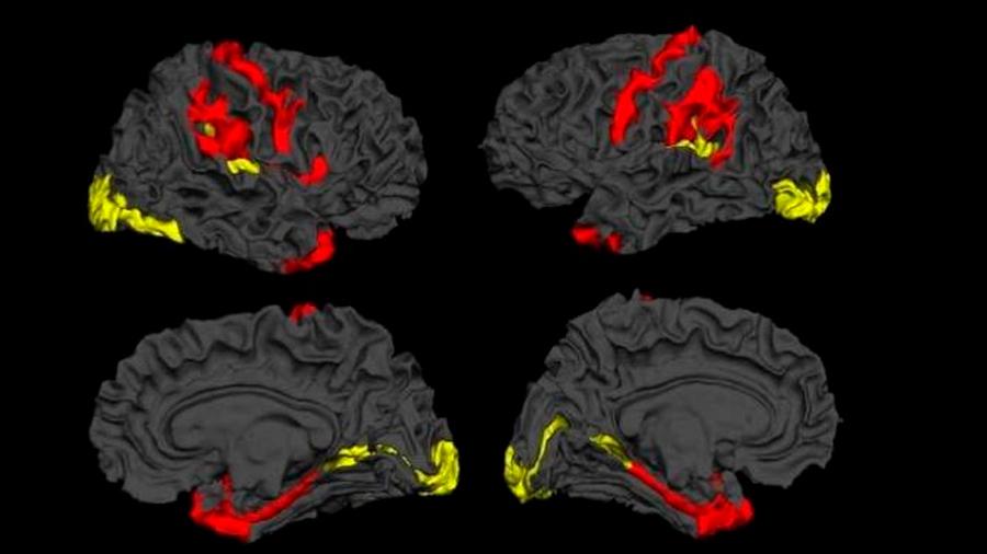 Hallan una capacidad innata del cerebro para luchar contra la esquizofrenia