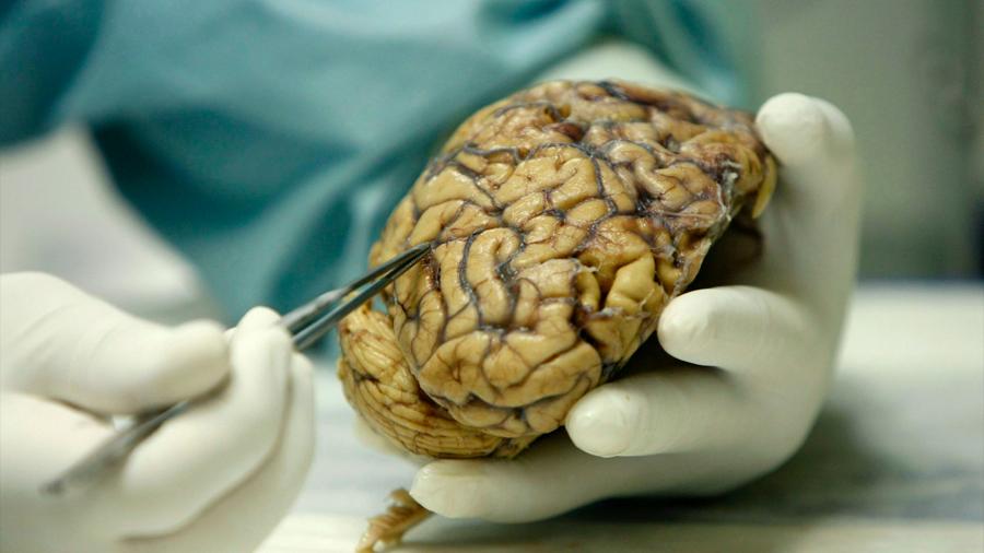 Cerebros de los 'superancianos' ofrecen claves sobre memoria