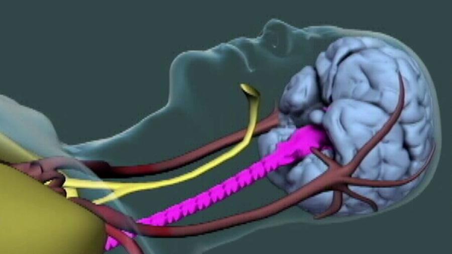 Descubren lo que pasa en el cerebro humano en el momento de la muerte