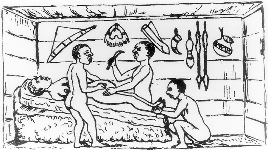 La primera cesárea a una mujer viva