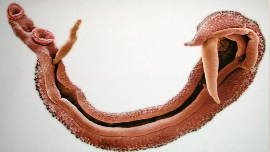 ¿Te dejarías infectar por un gusano parásito por 1.200 euros? Estos estudiantes sí