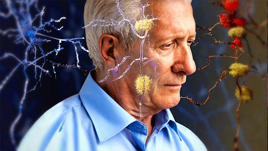 Las enfermedades priónicas pueden esconderse en el cerebro 30 años antes de ser fatales