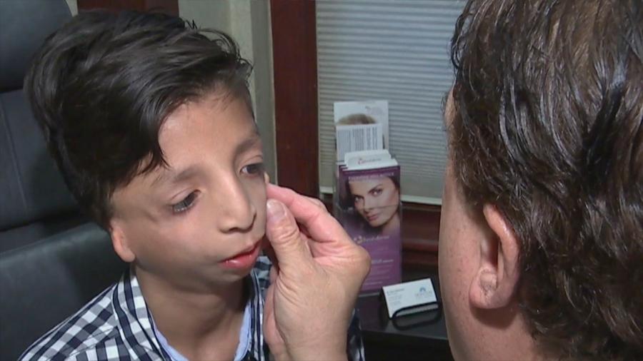 La ciencia hizo realidad el sueño de un niño que nació sin canales auditivos