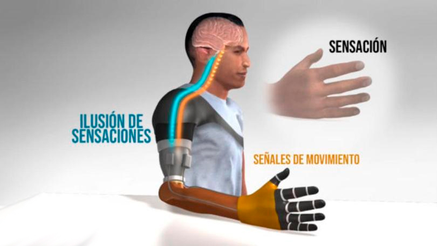 Restauran la sensación de movimiento en pacientes amputados