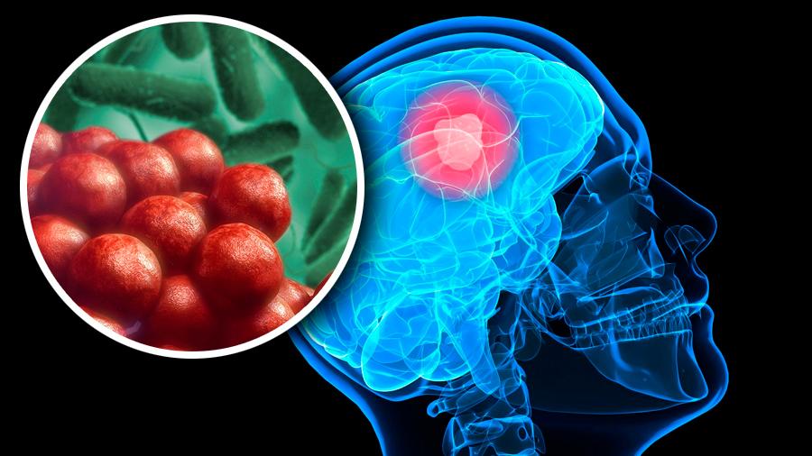Realizan ingeniería genética a la Salmonella para que destruya tumores cerebrales