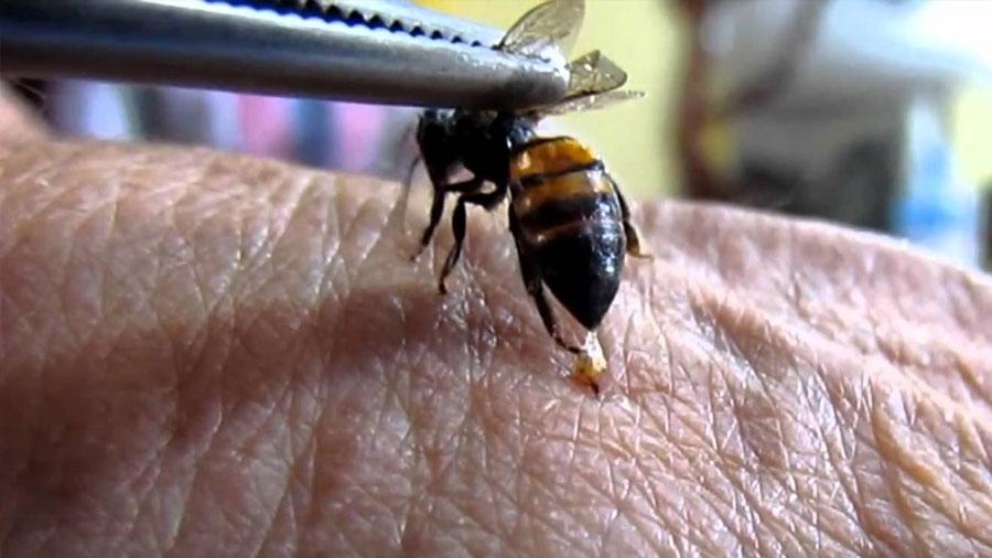 Una mujer muere en una sesión de acupuntura con abejas vivas