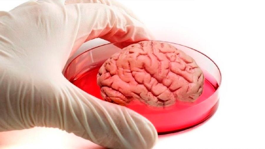 Científicos lusos crearán minicerebros de cuatro milímetros para tratar el autismo