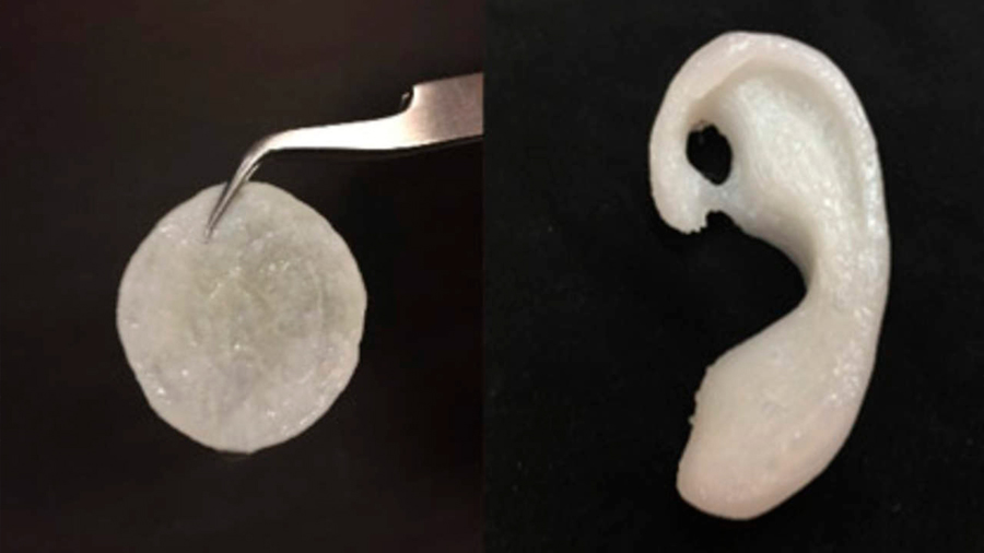 Crearon investigadores de México implante de oreja con células del paciente y polímeros