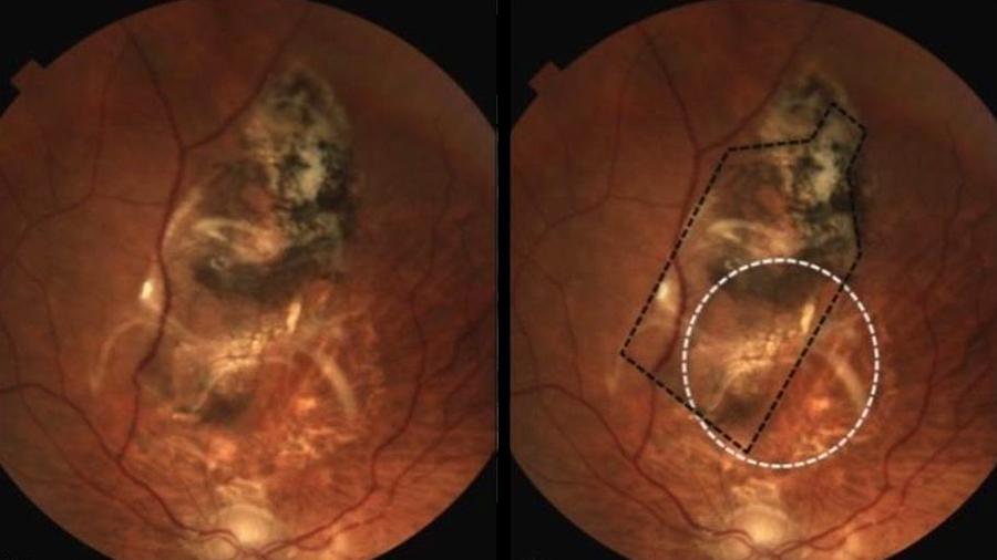 Logran científicos con un implante de retina frenar la ceguera causada por la degeneración macular