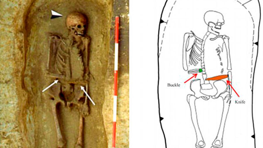 Guerrero medieval utilizó un cuchillo como prótesis a su mano amputada