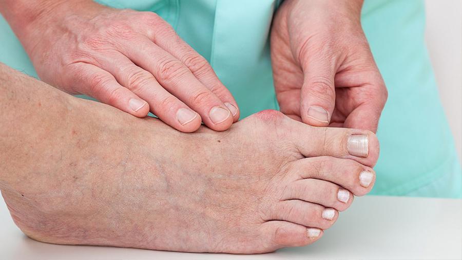 Nueva vía para tratar heridas diabéticas que no sanan