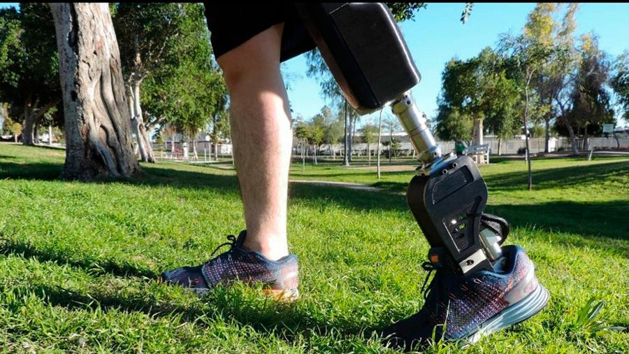 Mexicanos también desarrollan prótesis biónicas … pero a precios accesibles
