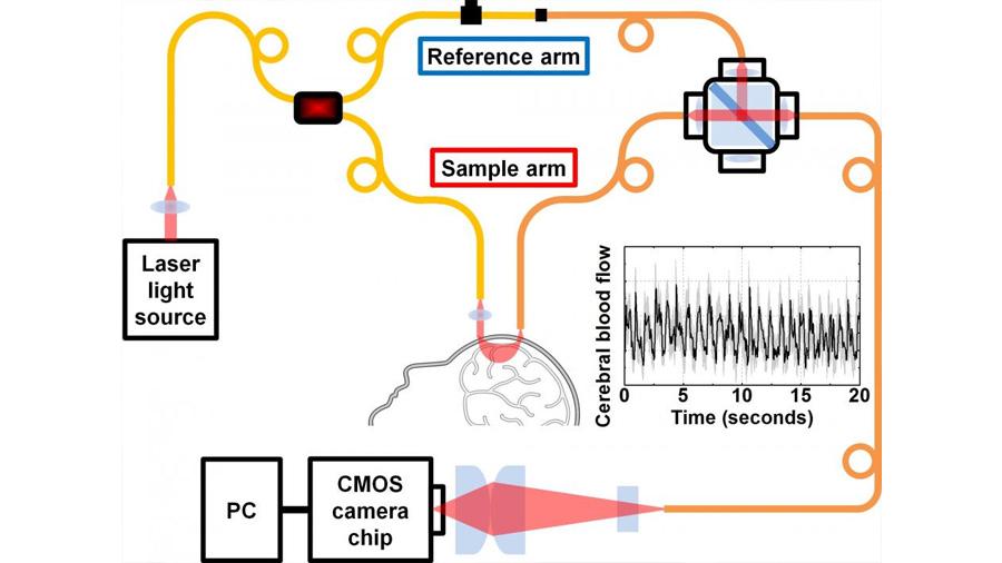 Investigadores desarrollan la nueva técnica para medir el flujo de sangre en el cerebro