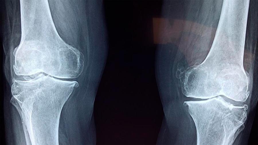 Descubren una diminuta estructura de cristal clave en la dureza de los huesos