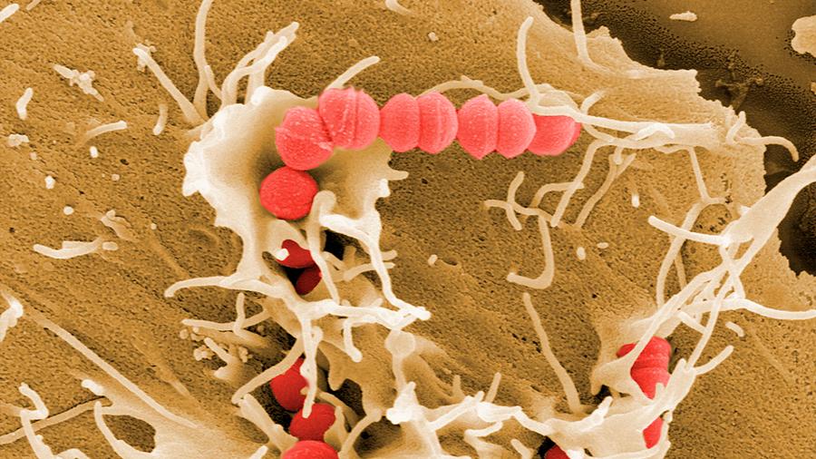 Identifican cómo el germen de la 'enfermedad carnívora' secuestra neuronas para evitar la destrucción inmune