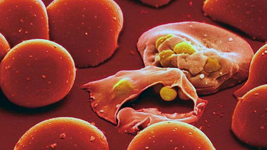 Los genes esenciales del parásito de la malaria, al descubierto