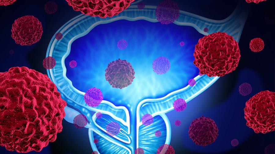 Descubierto el talón de Aquiles del cáncer de próstata más agresivo