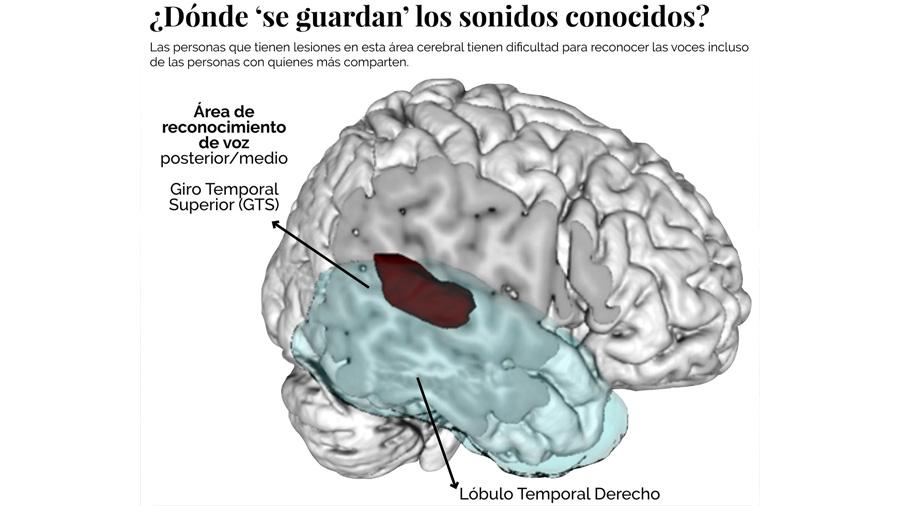 Científicos hallan zona del cerebro encargada de reconocer voces