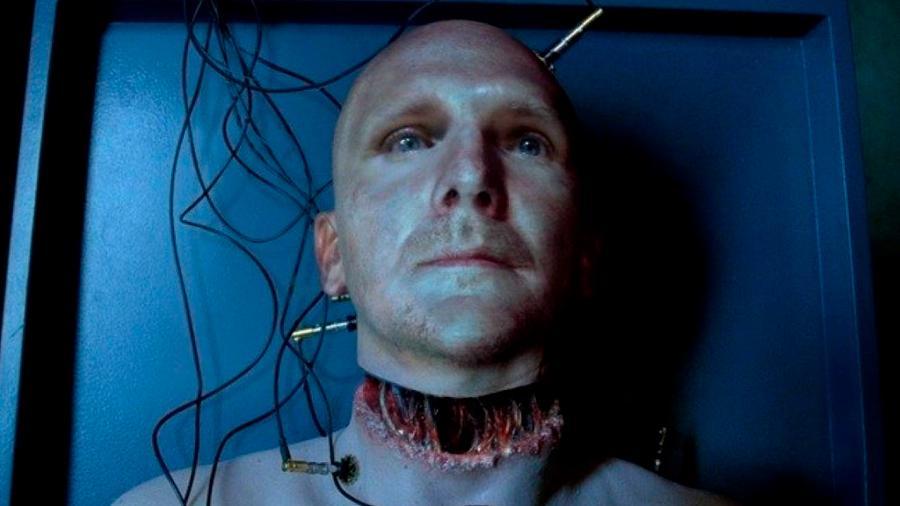 Los efectos secundarios de una operación de trasplante de cabeza serían atroces: la demencia
