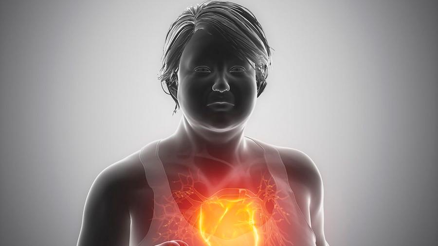 Qué es el síndrome metabólico y por qué debemos temerle