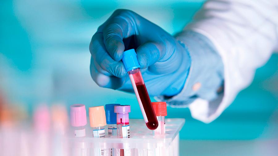 Descubren análisis de sangre capaz de detectar 10 tipos de cáncer años antes de que aparezcan