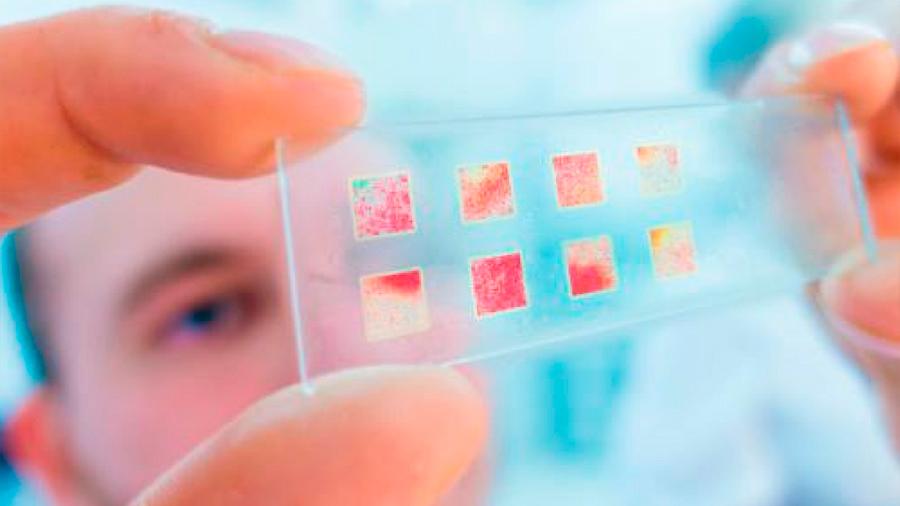 Biopsia líquida, la gran esperanza para controlar el cáncer
