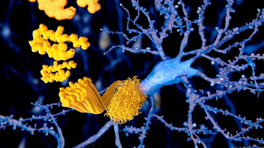 Descubren que acumulación de proteína Tau puede contribuir a la muerte celular en el Alzheimer
