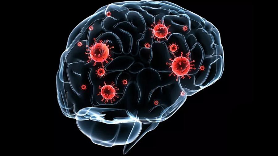Una nueva terapia alarga la vida de pacientes con metástasis cerebral