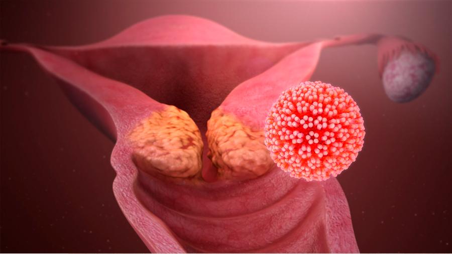 Denuncia investigadora líder la ignorancia que propaga el cáncer de cuello uterino