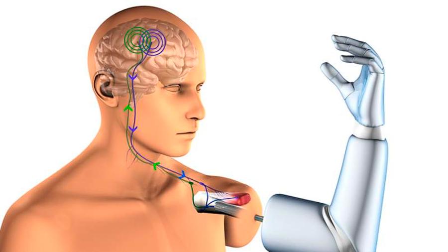 Estudio muestra que el encéfalo es capaz de reconocer prótesis ortopédicas como propias