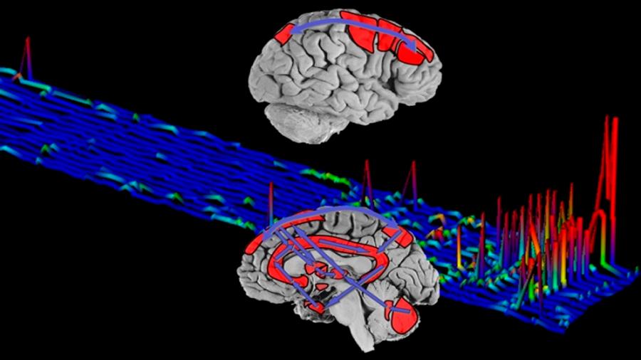 Molécula propia de la vigilia se halla en abundantes cantidades en el cerebro de los heroinómanos