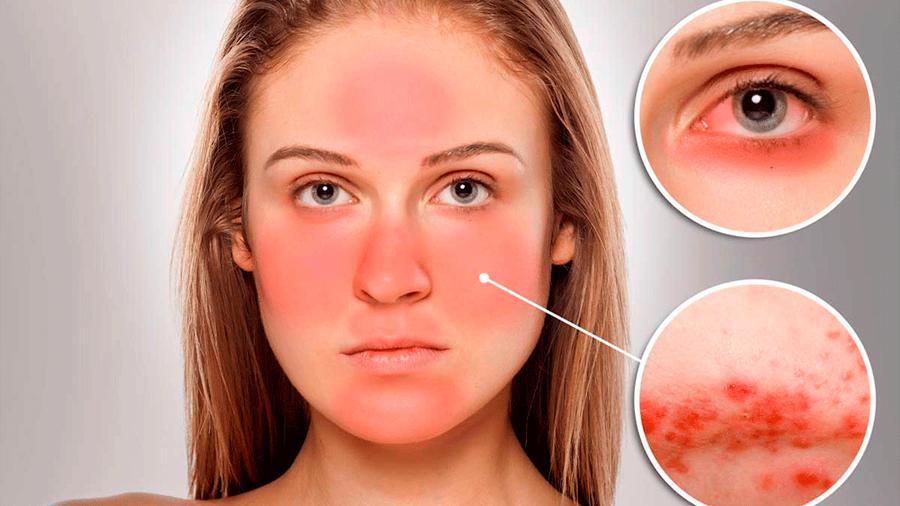 Descubren que una bacteria alojada en un ácaro presente en la piel origina la rosácea