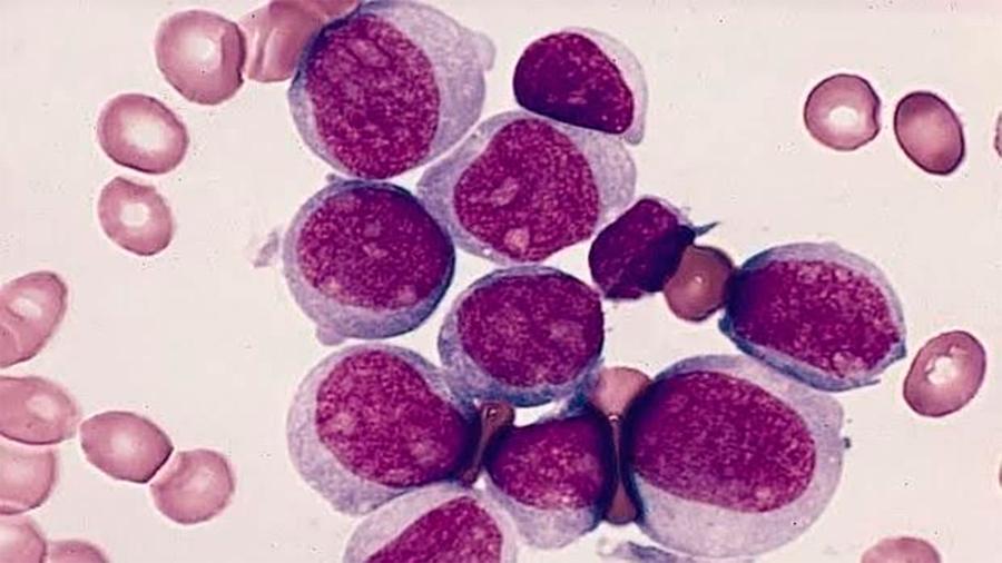 Leucemia Mieloide Aguda: hallan sistema para predecirla años antes del diagnóstico