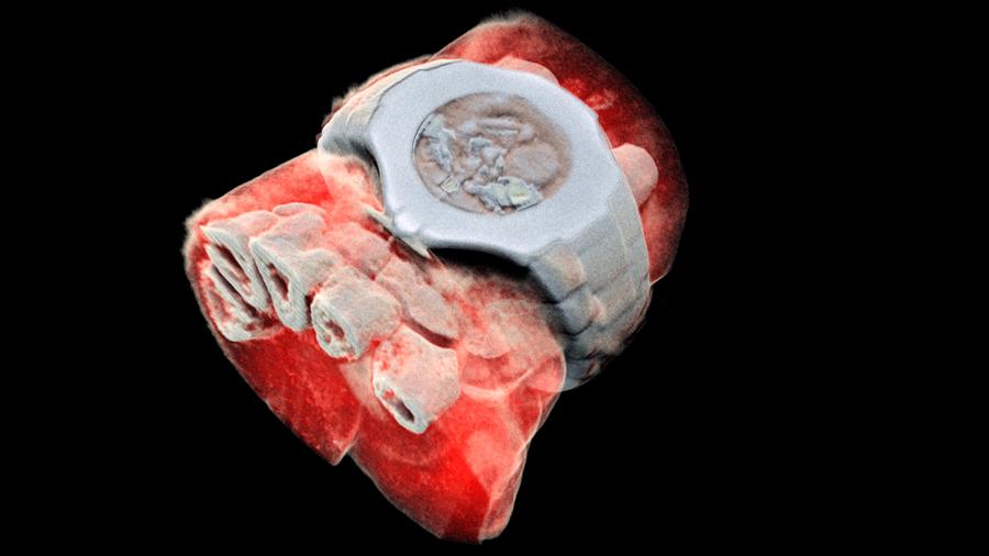 Tecnología de partículas revela las primeras imágenes 3D de rayos X en color