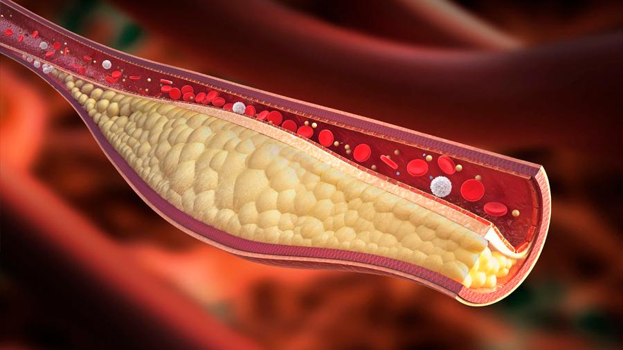 La edición del genoma abre el camino de la lucha contra el colesterol