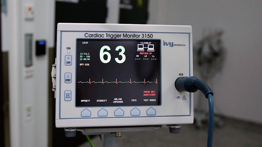 Crean algoritmo que detecta los ataques cardiacos tan bien como un humano