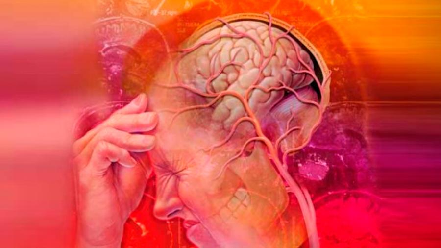 Identifican el tipo de actividad cerebral que da origen a la migraña
