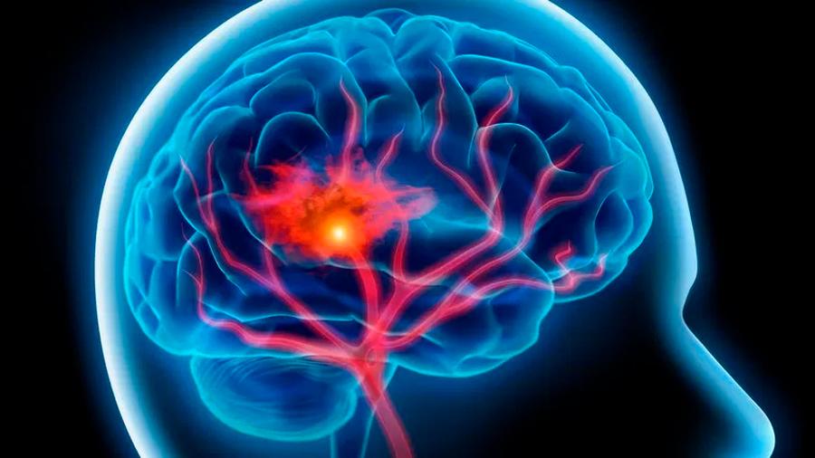 Descubren cómo un tipo de leucemia consigue llegar al cerebro