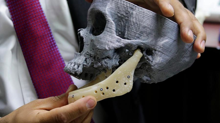 Investigador del IPN realiza prótesis de mandíbula única a nivel mundial