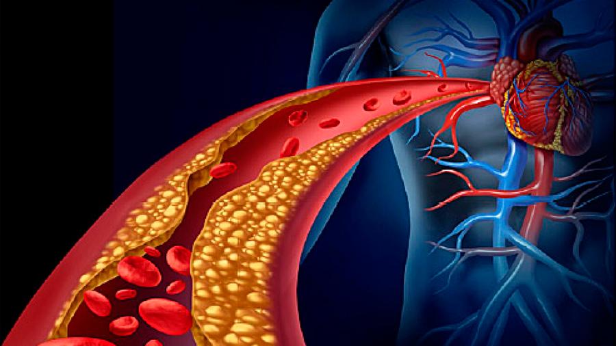 Científicos revelan cómo la obesidad causa la diabetes o las arterias obstruidas