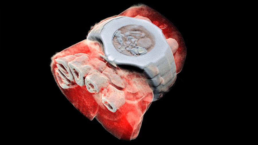 Nuevo ecógrafo toma rayos X en 3D, a color y cuyo fin busca evitar operaciones quirúrgicas