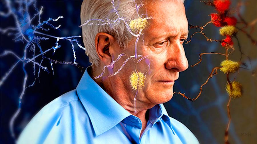 Fármaco contra Alzheimer recorta deterioro cognitivo en 30%