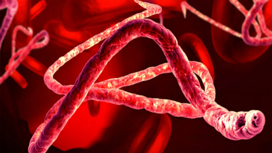 Descubren nueva cepa de ébola en Sierra Leona