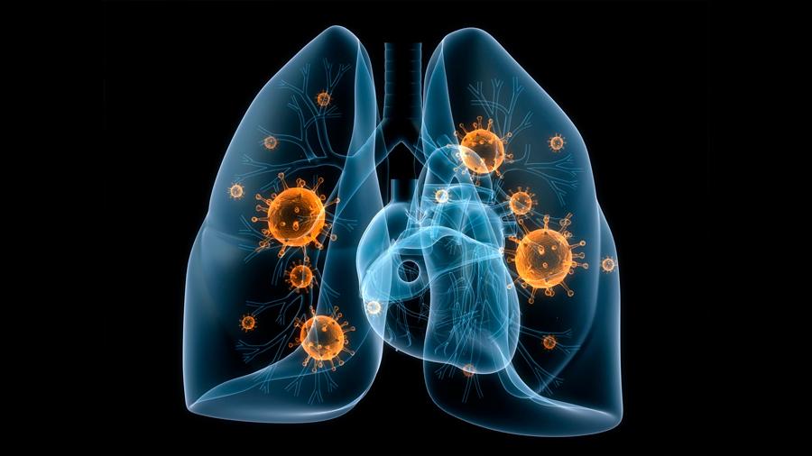 Científicos han descubierto un nuevo tipo de célula en los pulmones