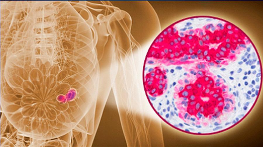 Descubren prometedor tratamiento para cáncer de mama que impide enlace entre células sanas y las tumorales