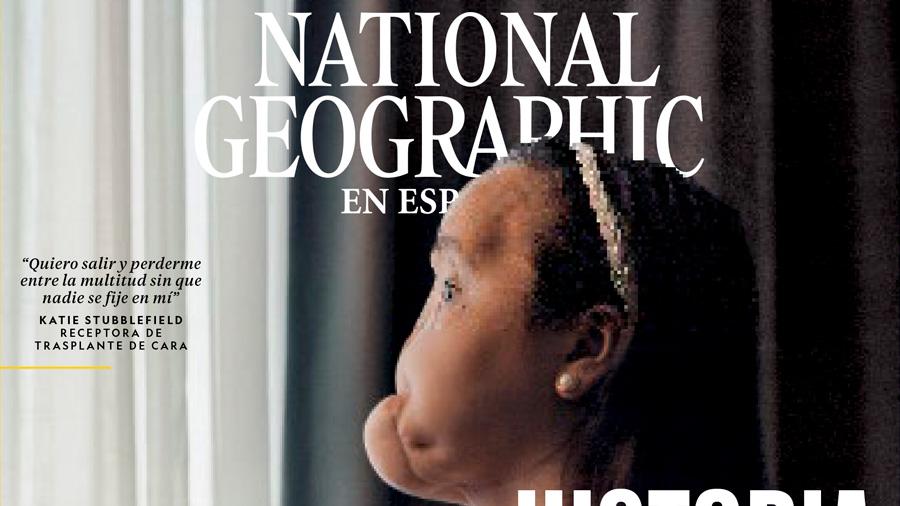 National Geographic revela por primera vez el proceso de un trasplante total de cara