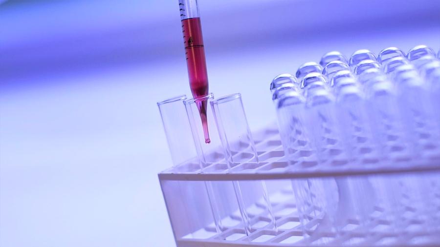 Descubren un agente químico con capacidad para matar las células agresivas de tumores cerebrales