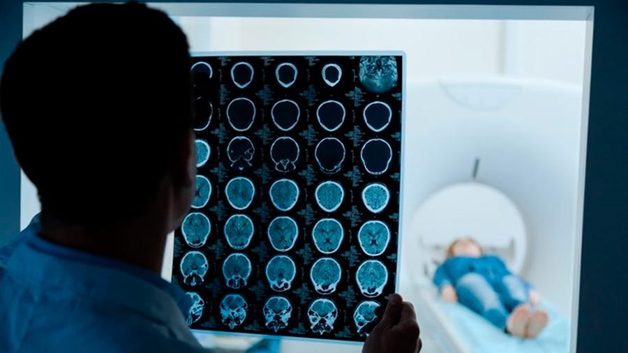 Prueban con éxito inmunoterapia combinada que reduce las metástasis cerebrales de melanoma